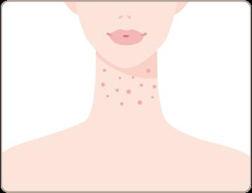 湿疹・皮膚炎