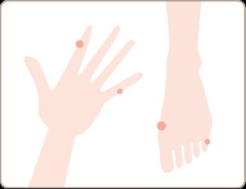手足のイボ